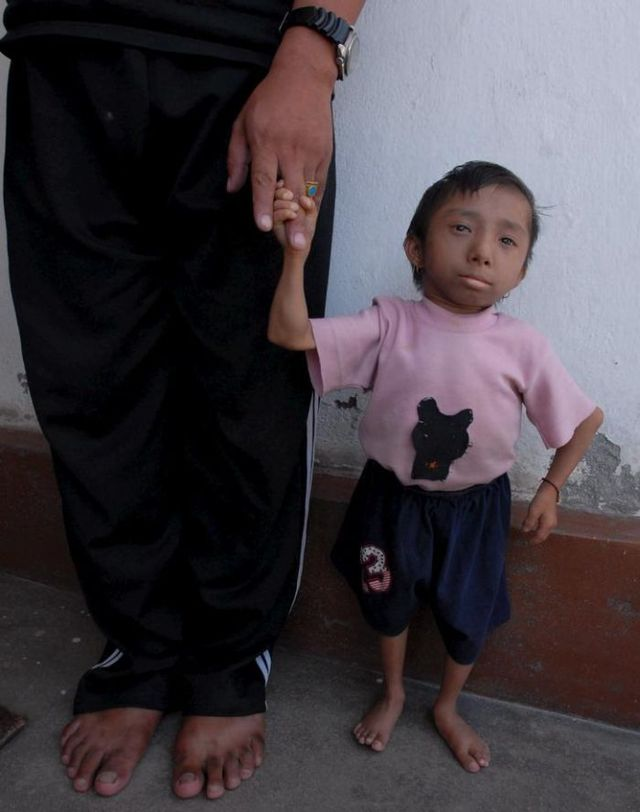 The World's Smallest Man (14 pics)