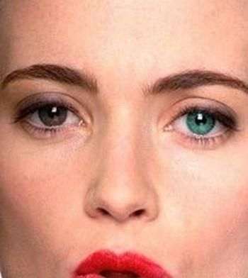 Why having one eye color when you can have two? (15 pics)