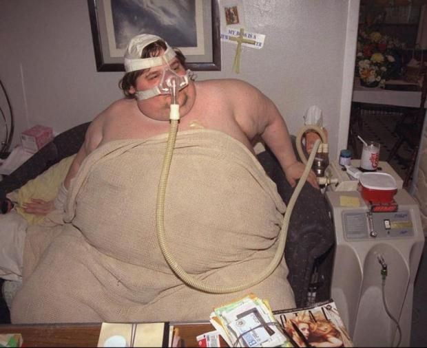 He lost his weight considerably and several years later, he ballooned back (5 pics)