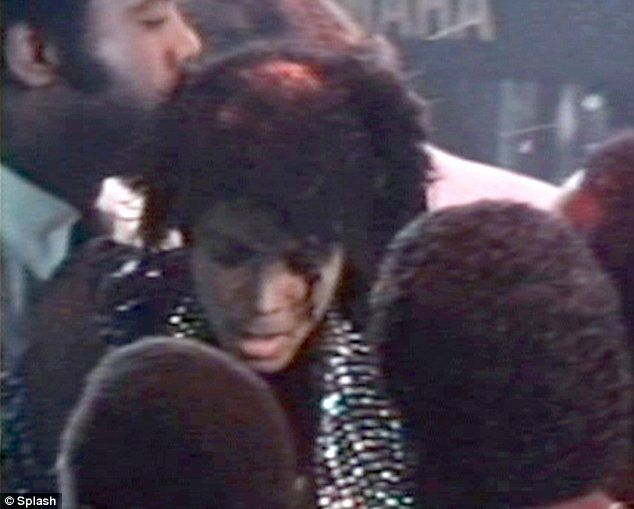 Michael Jackson's hair on fire in Pepsi advert (12 pics + 1 video)