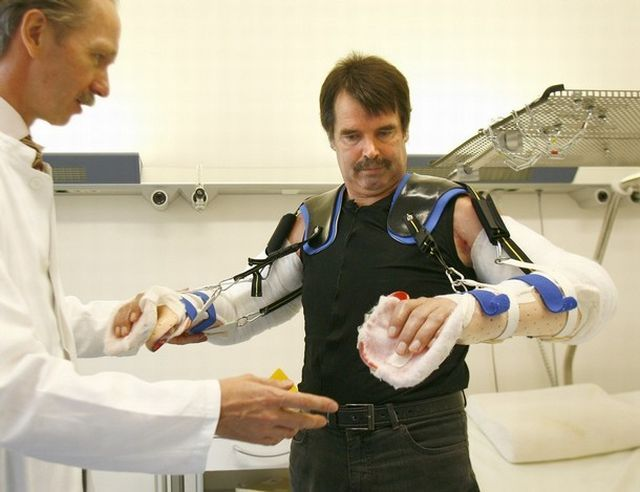 The first in the world complete double arm transplant (13 pics)