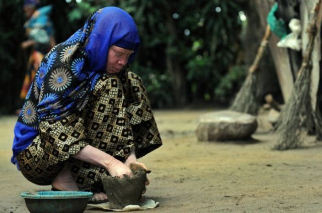 African Albinos (8 pics)