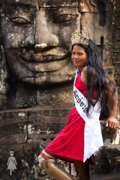 The beauty contest for disabled women (20 pics)