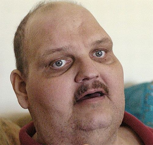 One of the heaviest men in the world has been taken to the hospital (19 pics)