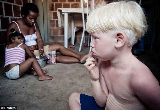 A black Brazilian mother has given birth to 3 albino children! (4 pics)