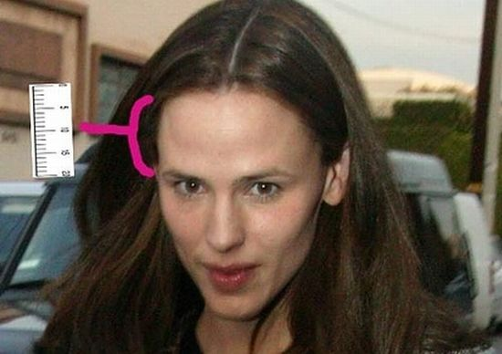 Pin Celebrities With Big Foreheads 20 Pics on Pinterest