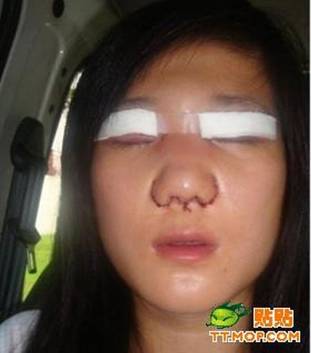 Plastic surgery is for all ages? (18 pics)
