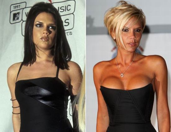 victoria beckham before and after 23 pics picture 19