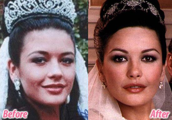 Catherine Zeta-Jones plastic surgery
