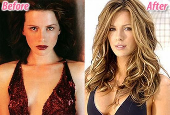 Stars before and after plastic surgery (47 pics)