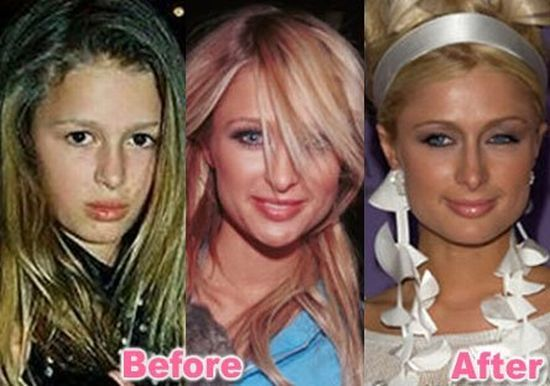 Stars Before And After Plastic Surgery 47 Pics