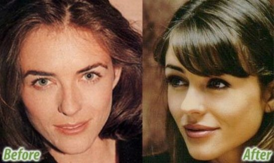 Stars Before And After Plastic Surgery 47 Pics - Izismilecom-7503