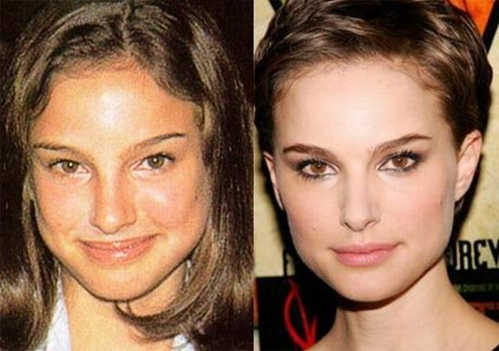 Stars before and after plastic surgery (47 pics ...