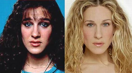 Stars Before And After Plastic Surgery 47 Pics - Izismilecom-2260