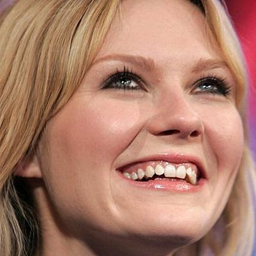 5 Celebrities You Didn't Know Had Fake Smiles | beauty ...