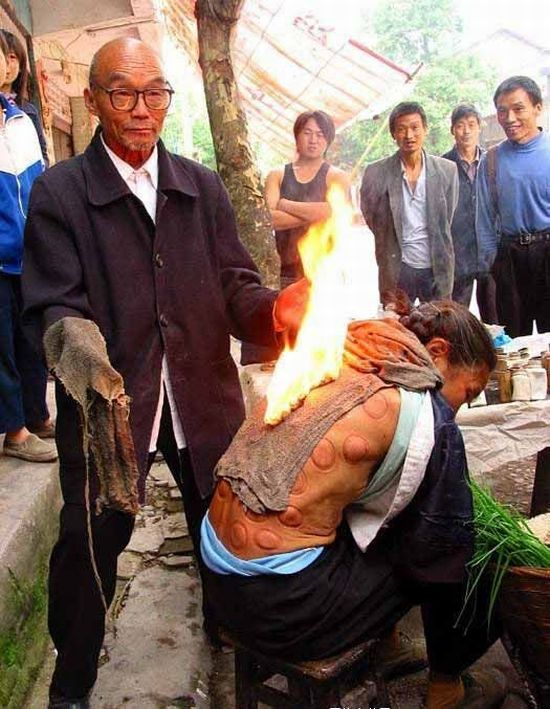 Chinese Traditional Medicine (7 pics)