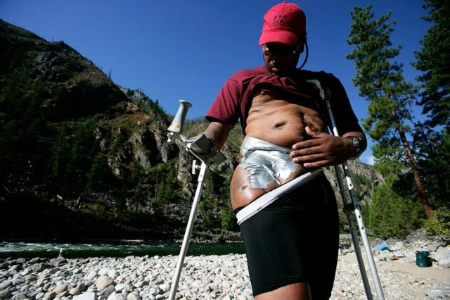Extreme Therapy – Touching Photos of Disabled People Who Don't Give Up (19 pics)