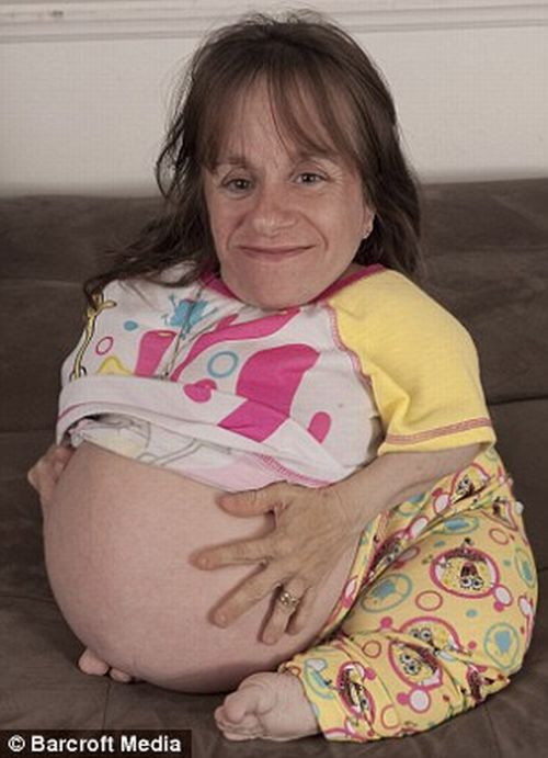 World's Smallest Mother is Having Her 3rd Baby (8 pics)