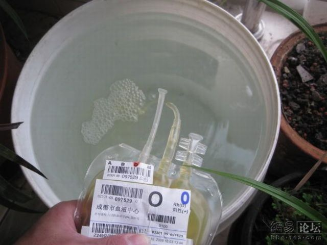 Stupid Person of the Day – Blood Plasma for Flowers!! (6 pics)