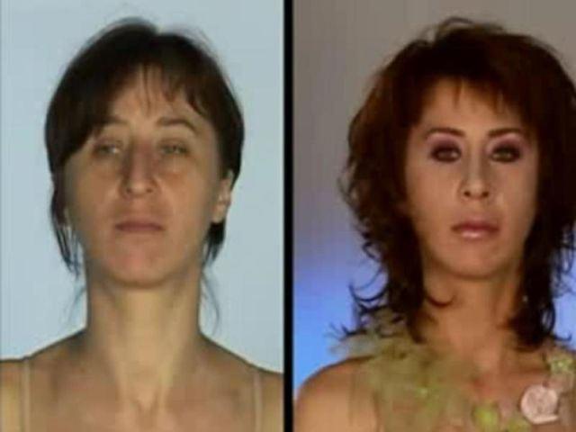 Successful Plastic Surgery (31 pics)