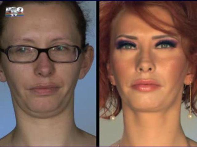 Successful Plastic Surgery (31 pics)