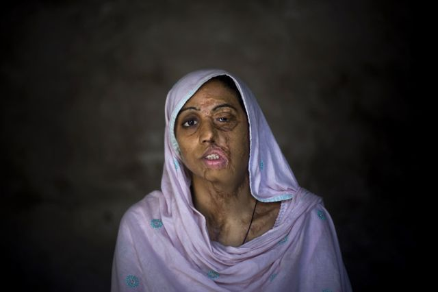 "OMG of the Day. ""Acid Terrorism"" Against Women in Pakistan (12 pics + text)"