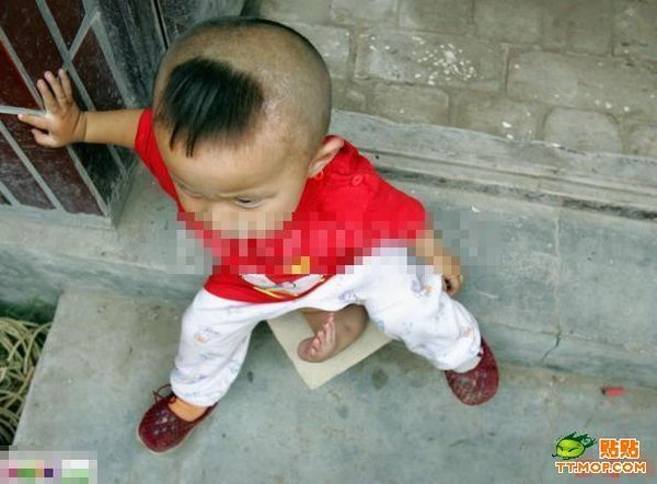Poor Children with Abnormalities (13 pics)
