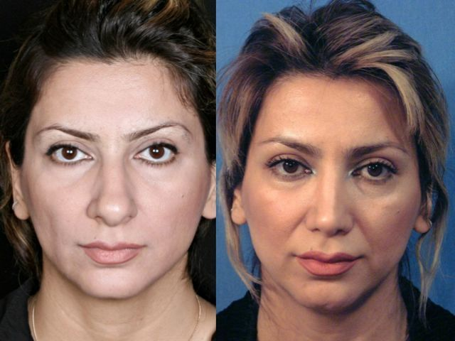 Before and After a Nose Job (24 pics)