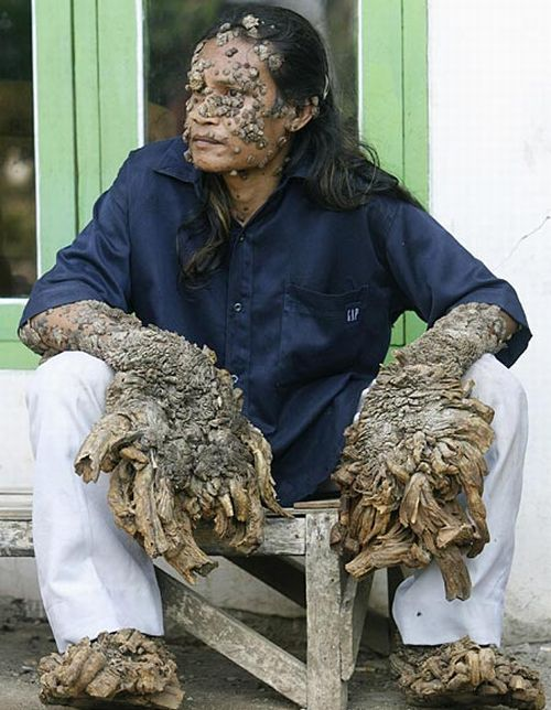 Have You Ever Seen a Tree Man? (19 pics)