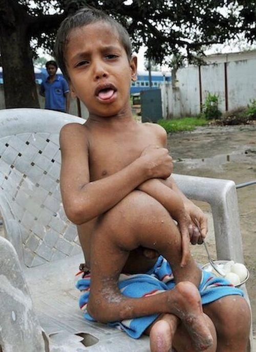 A Boy with Seven Limbs (5 pics)