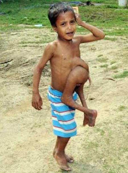 A Boy with Seven Limbs (5 pics)