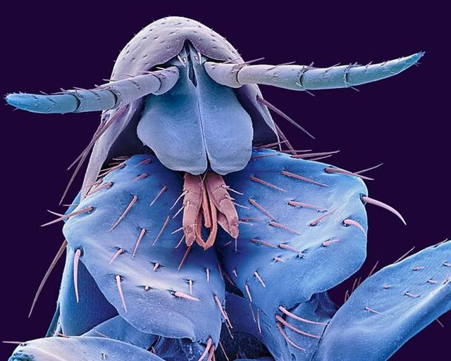 The Wonders of the Electron Microscope (12 pics)