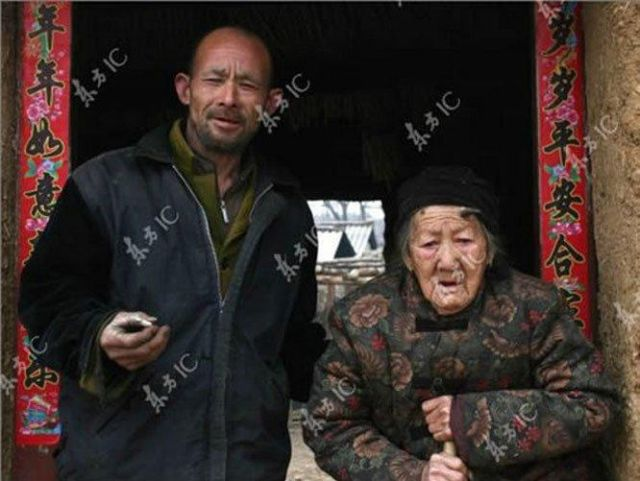 Grandma with a Horn on Her Forhead! (6 pics)