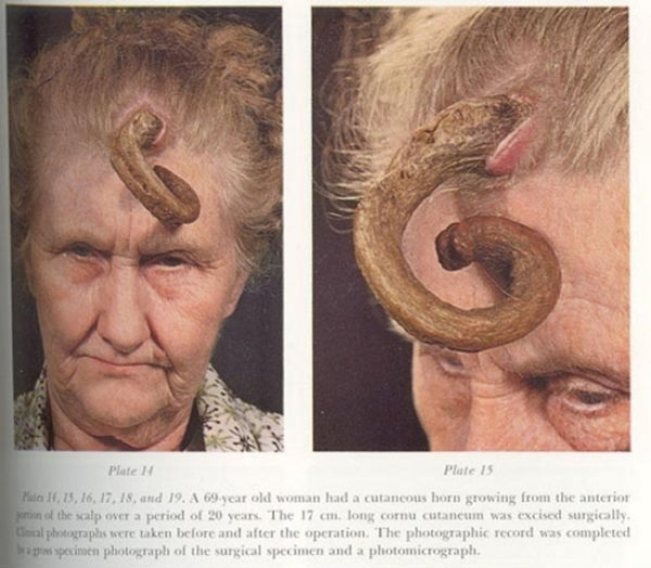 People Who Grow Real Horns (9 pics)