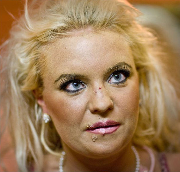 Plastic Surgery Turns a Pretty Woman into a Monster (21 pics)