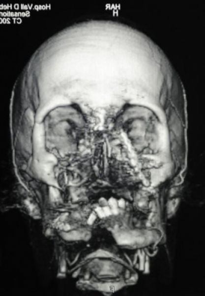The Results of the Second Face Transplant in Spain (11 pics)