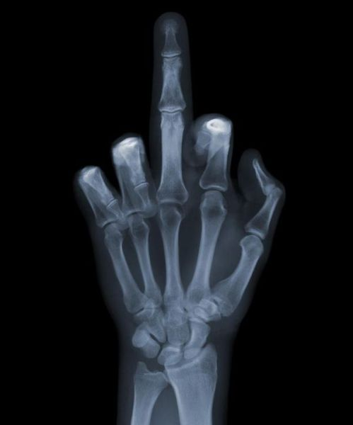 Cool X-Ray Pictures (15 pics)