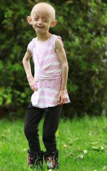 7-Year-Old Girl with the Body of an Old Woman (19 pics)