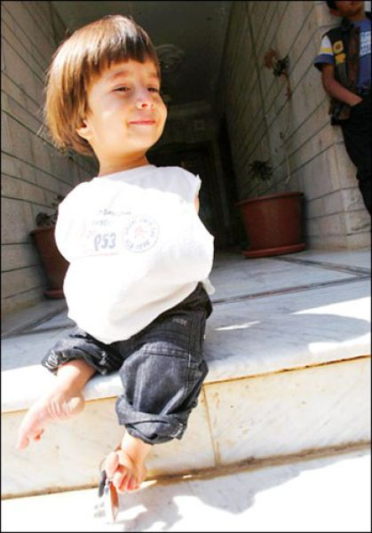 Little Boy without Arms (14 pics)