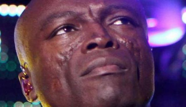 Singer seal and facial scars