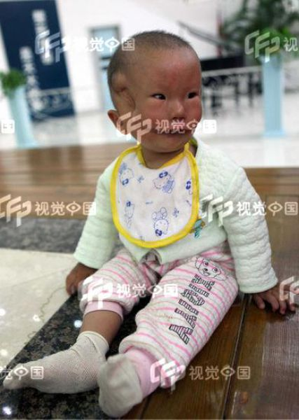 Chinese Boy Born with a Mask-Like Face (5 pics)