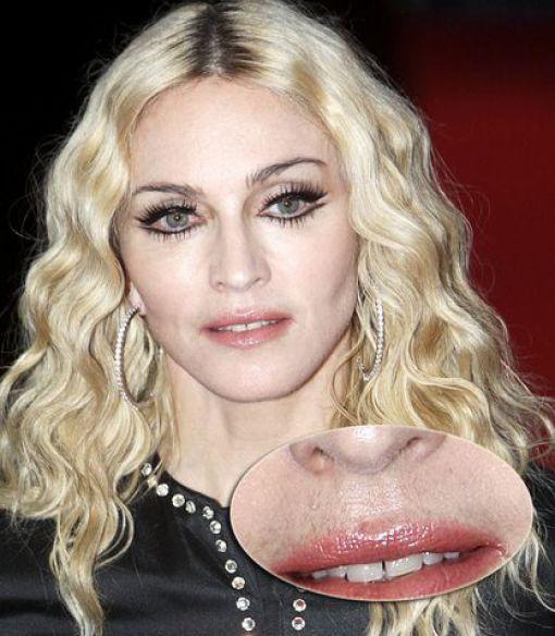 Celebrities Aren't Perfect (31 pics)