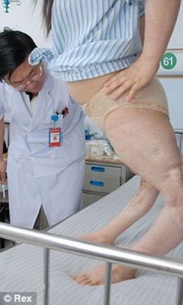 Car Accident Twisted Girl's Legs (4 pics)