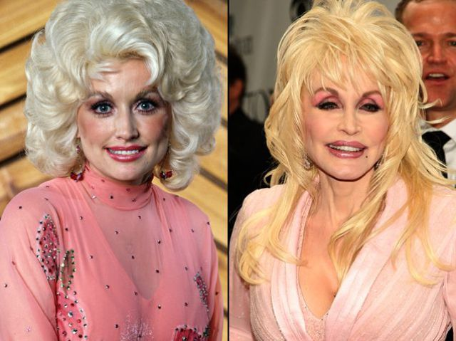 Plastic Surgery and Celebrities (21 pics)