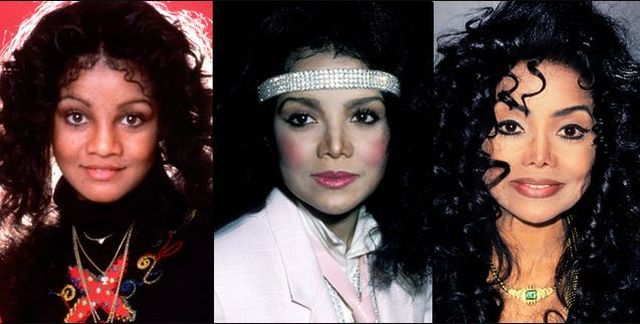 Plastic Surgery and Celebrities (21 pics)