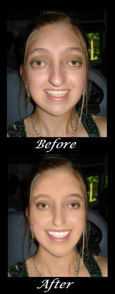 Make-over (1 pic)