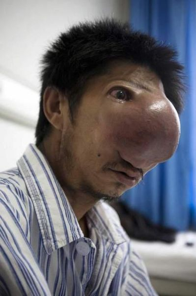 The Man with the Huge Nose (12 pics)
