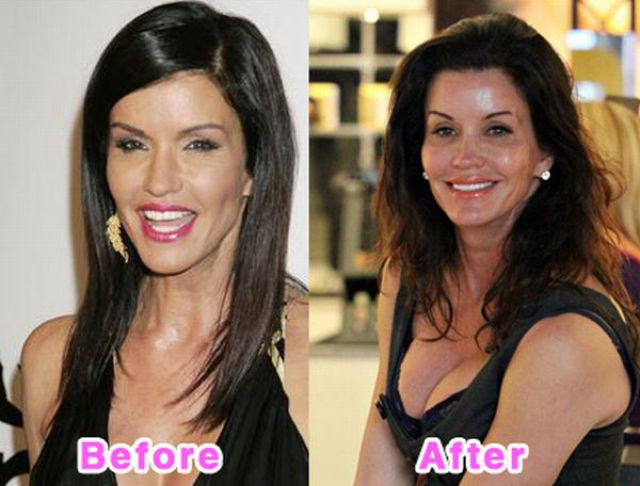 Celebrity Plastic Surgery Before And After Photos 16 Pics