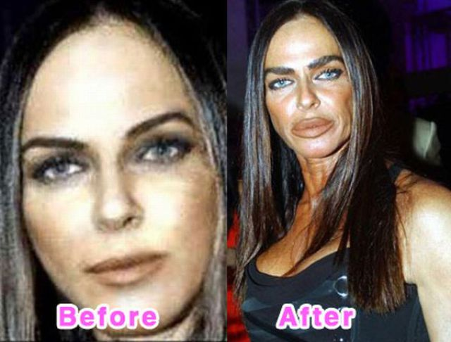Celebrity Plastic Surgery Before and After Photos (16 pics)