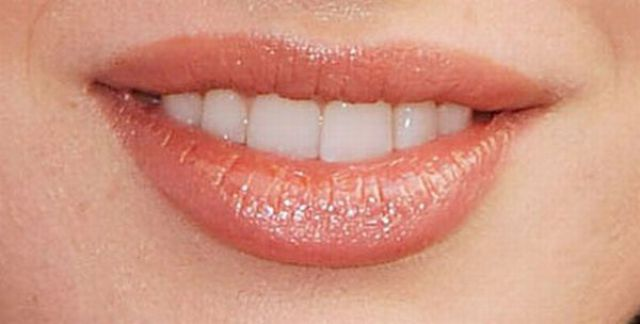 Guess Who: Celebrity Smiles (20 pics)